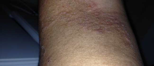 Leukemia Cutis Or Psoriasis 5 out of 5 based on 9 ratings 2
