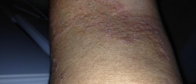 Psoriasis vulgaris is a modern medical term 3